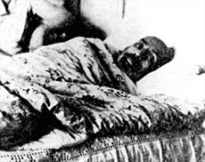 Mehmet-Akif-Ersoy-Hastaligi